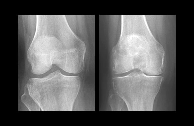 LEFT = Healthy knee x-ray, RIGHT = Osteoarthritic knee x-ray.